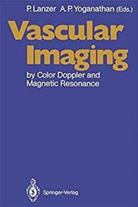 Download Vascular Imaging by Color Doppler and Magnetic Resonance djvu